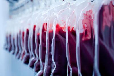 Transfúzní služba AGEL v Šumperku se zaměří na prvodárce